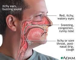 Obat alternatif sinusitis